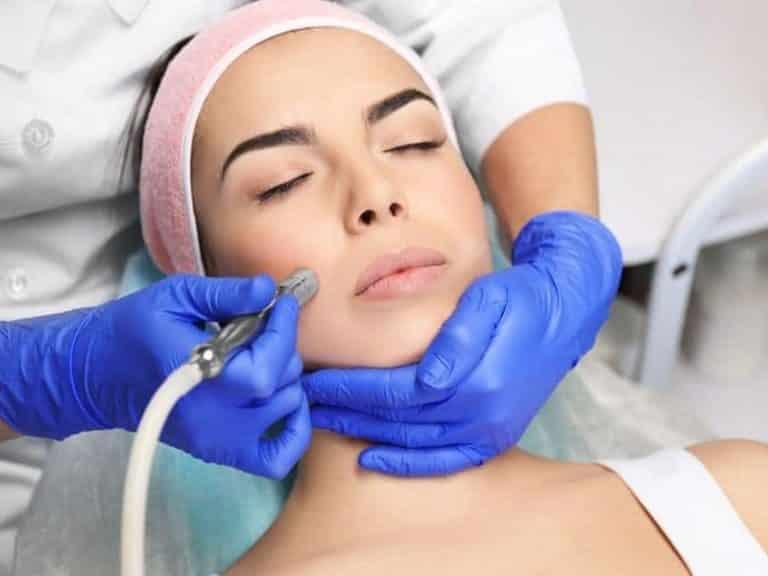 Facial exfoliation